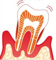 なぎさ歯科クリニック 重度歯周病