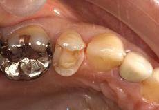 なぎさ歯科クリニック 審美歯科 セレックを使用した症例