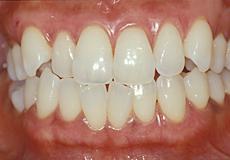 なぎさ歯科クリニック セラミック修復 メラニン除去(歯肉の漂白)