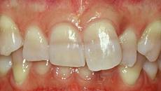 なぎさ歯科クリニック セラミック修復 ラミネートベニア