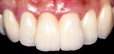 なぎさ歯科クリニック セラミック修復 ブリッジ