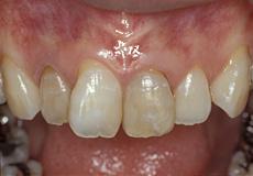 なぎさ歯科クリニック 歯周形成外科 症例紹介