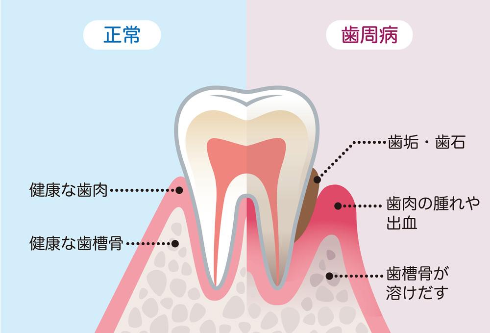 なぎさ歯科クリニック 歯周病とは?