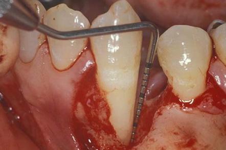なぎさ歯科クリニック 歯周再生療法 症例紹介 治療前