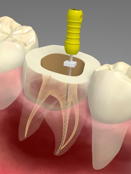 なぎさ歯科クリニック 汚染部分の確実な除去に重要なニッケルチタンファイルの使用