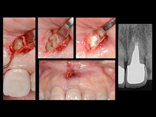 なぎさ歯科クリニック 根管治療 治療後