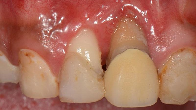 なぎさ歯科クリニック 歯周再生療法 症例紹介 治療前2