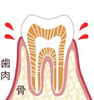 なぎさ歯科クリニック 歯肉炎