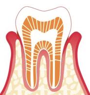なぎさ歯科クリニック 軽度歯周病