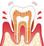 なぎさ歯科クリニック 中度歯周病