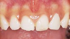 なぎさ歯科クリニック セラミック修復 オールセラミック