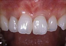 なぎさ歯科クリニック 歯周形成外科 治療後
