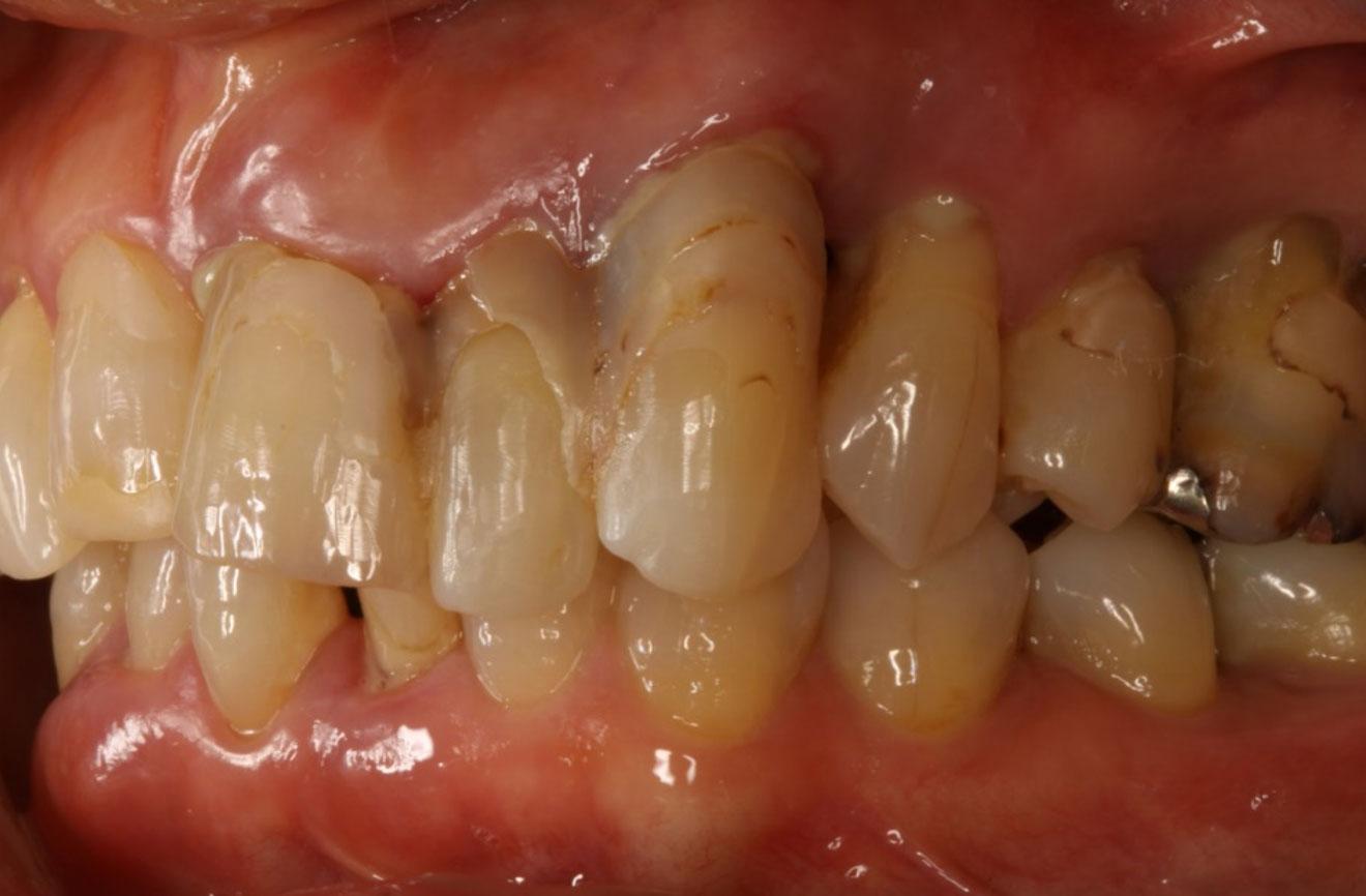 なぎさ歯科クリニック 歯周病治療 症例紹介