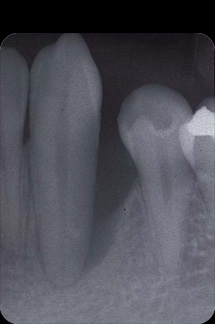 なぎさ歯科クリニック 歯周再生療法 症例紹介