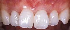 なぎさ歯科クリニック セラミック修復 ホワイトニングの症例