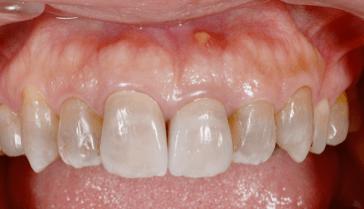なぎさ歯科クリニック 根管治療 症例紹介