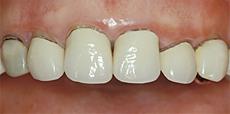 なぎさ歯科クリニック 切除療法 治療前