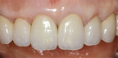 なぎさ歯科クリニック 切除療法 治療後
