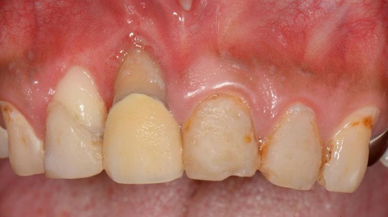 なぎさ歯科クリニック 歯冠修復 症例紹介1 治療前1