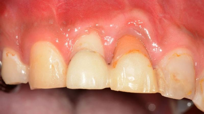 なぎさ歯科クリニック 歯周再生療法 症例紹介 治療前1
