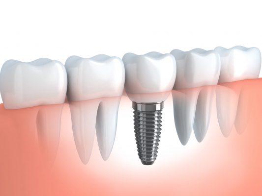 なぎさ歯科クリニック 噛みごこちも外観も天然の歯とほとんど変わらないインプラント