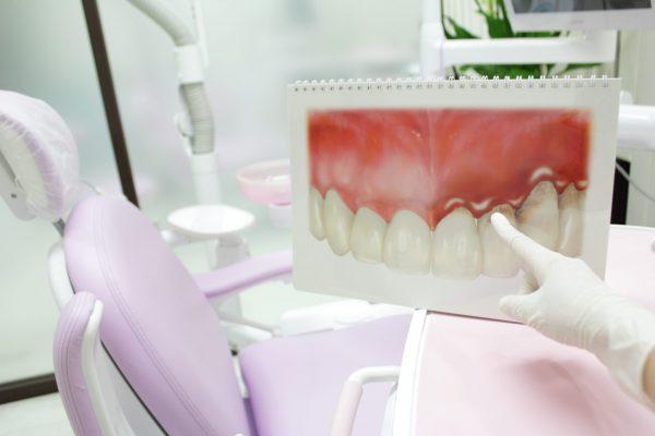 なぎさ歯科クリニック 歯周再生療法とは