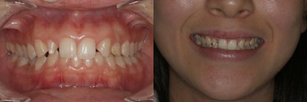 なぎさ歯科クリニック ダイレクトボンディング