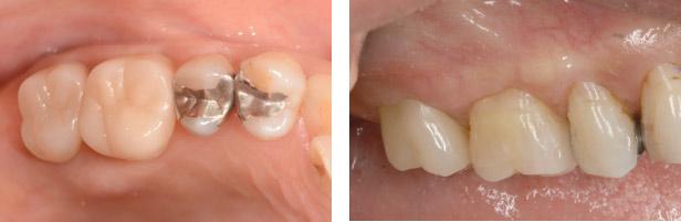 なぎさ歯科クリニック セラミック修復 セレックを使用した症例