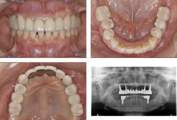 なぎさ歯科クリニック インプラント治療 症例紹介