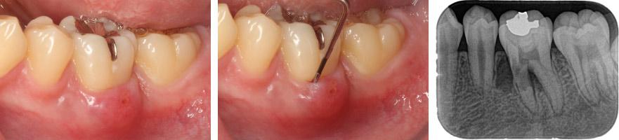 なぎさ歯科クリニック 根管治療