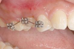 なぎさ歯科クリニック 歯牙移植